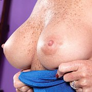 Freckled Mature Breasts