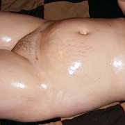 Oiled Up Naked Fat Chick With Stretch Marks
