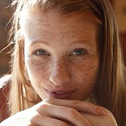Deeply Freckled Redhead Stares Into Camera